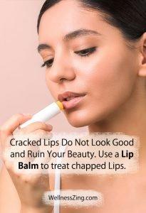 Use Lip Balm to Treat Chapped Lips