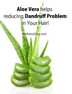 Aloe Vera Helps Reducing Dandruff Problem in Hair