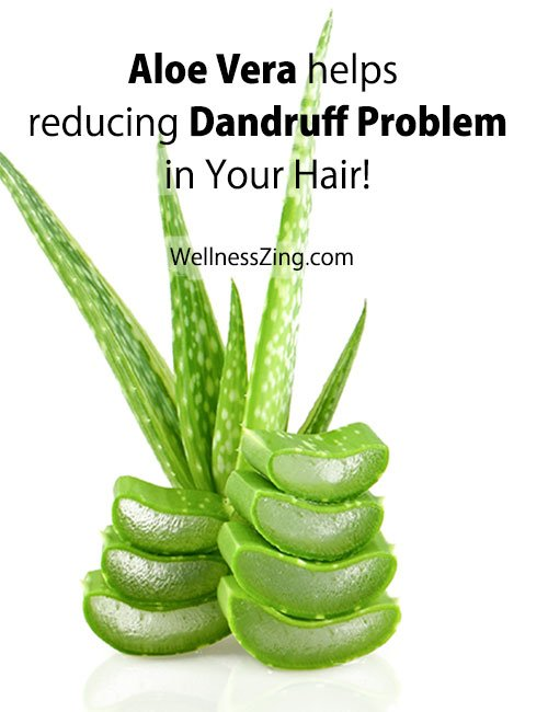 Aloe Vera Helps Reducing Dandruff Problem in Hair