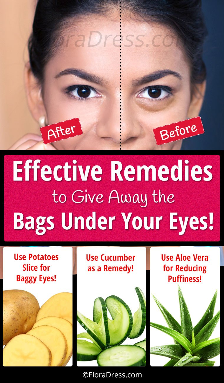 Effective Remedies to Give Away the Bags Under Eyes