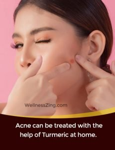 Turmeric is used to treat acne and pimples