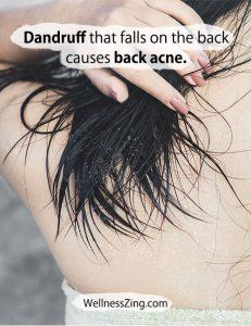 Hair Dandruff Causes Back Acne