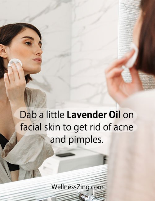 Lavender Oil Helps Get Rid of Acne and Pimples