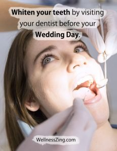 Whiten Your Teeth by Visiting a Dentist