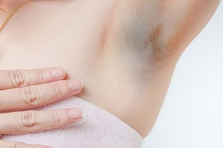 How to Treat Dark Underarms with Home Remedies