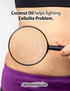 Coconut Oil Helps Fighting Cellulite Problem