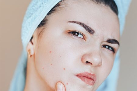 Home Remedies for Open Pores On Skin