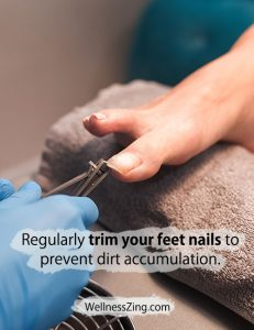 Trim Your Feet Nails Regularly