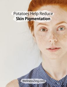 Potatoes Help Reduce Skin Pigmentation