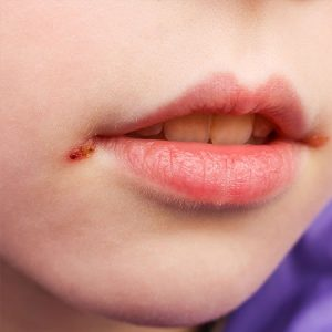 Cold Sores Fever Blisters Home Remedies