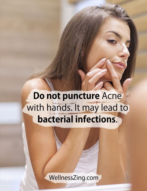 Do not puncture acne on face
