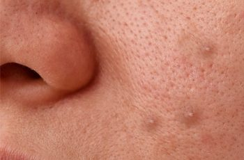 How to Treat Whiteheads on Face with Home Remedies