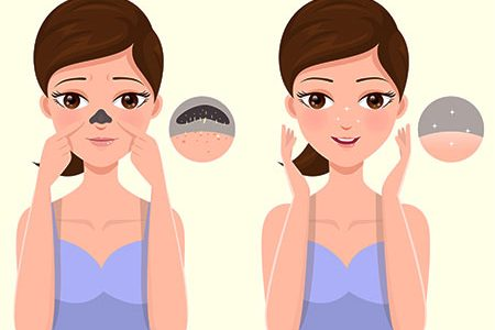 How to Remove Clogged Pores on Face