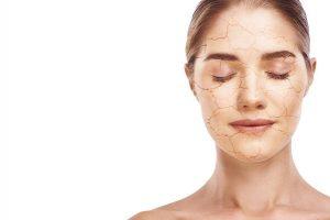 Dry Facial Skin