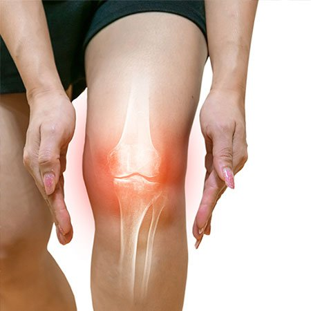 Bone Health and Joint Pain Treatment