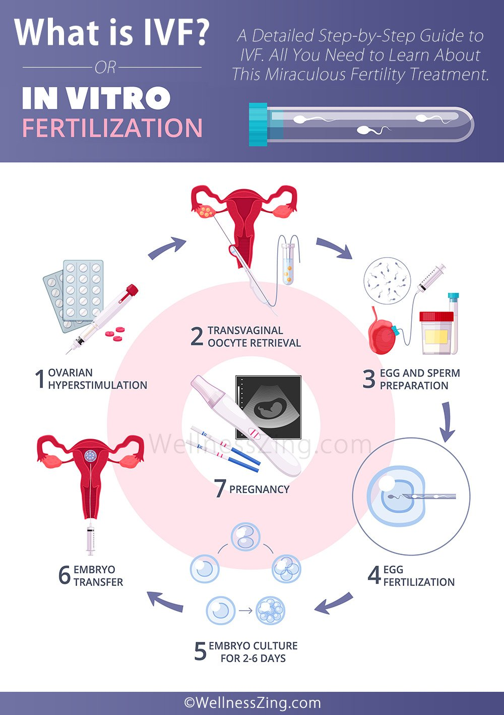 What is IVF Treatment, Success Rate, Risks and Complications