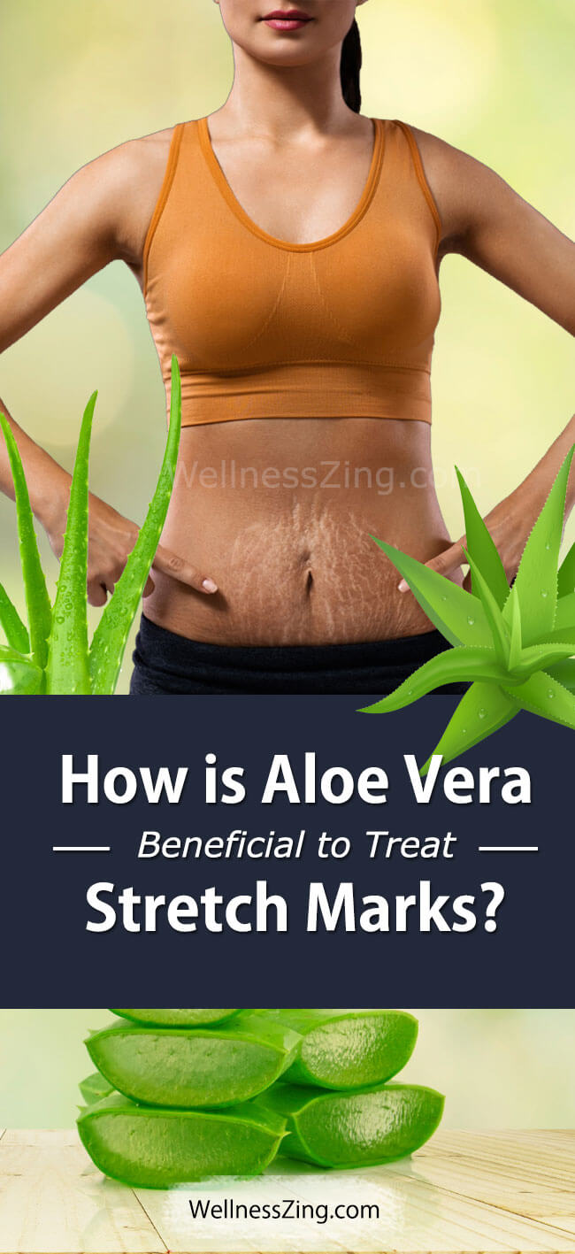 How is Aloe Vera Beneficial For Treating Stretch Marks?