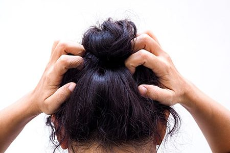 Fungal Infection on Scalp Treat with Natural Remedies
