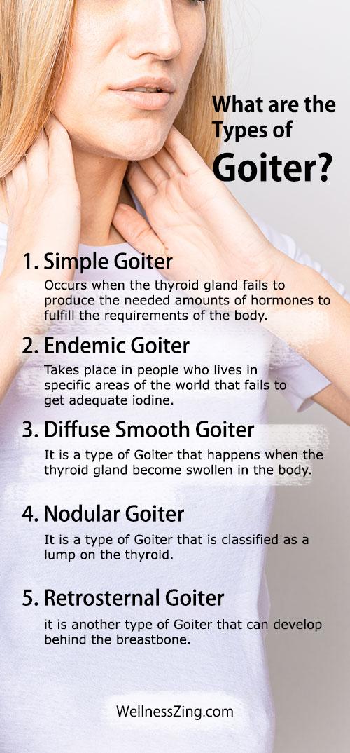 Types of Goiter