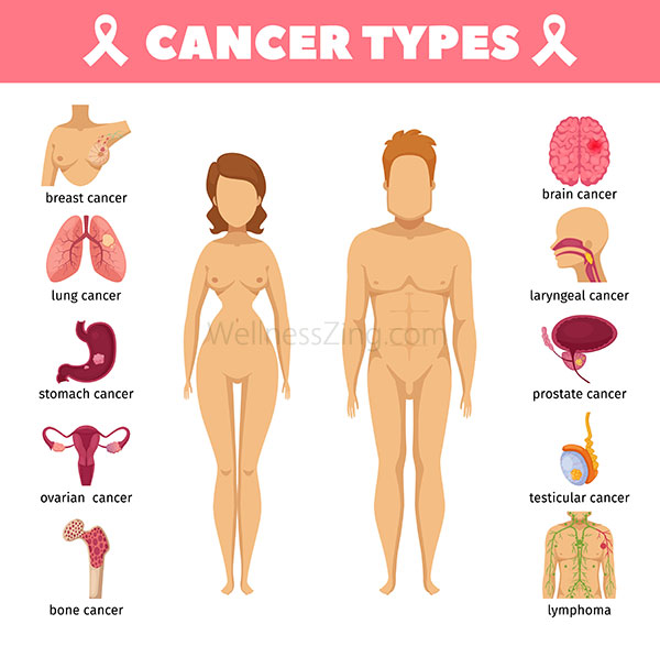 Cancer Treatment Symptoms and Causes